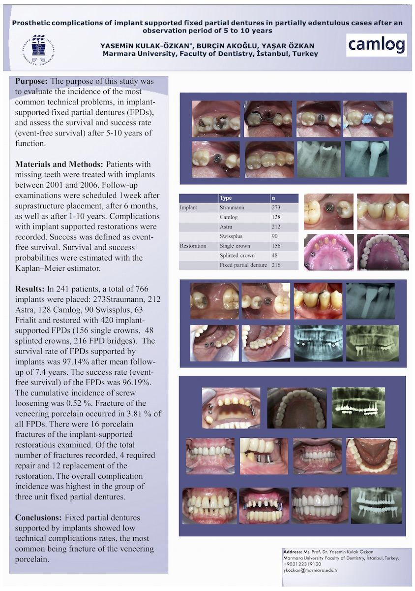 C_Kulak-Ozkan_Prosthetic complications of implant supported fixed partial dentures